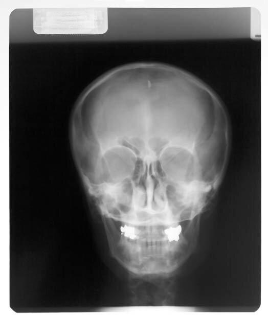 Фоны для презентаций - Рентген 2