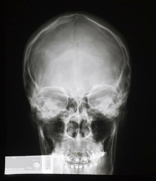 Фоны для презентаций - Рентген 4