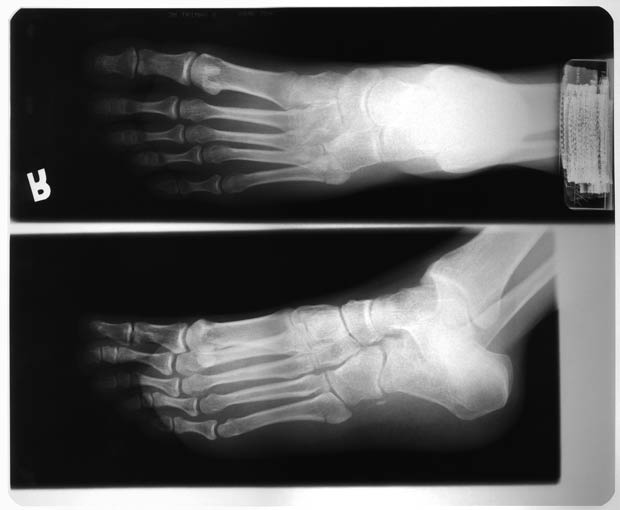 Фоны для презентаций - Рентген 5