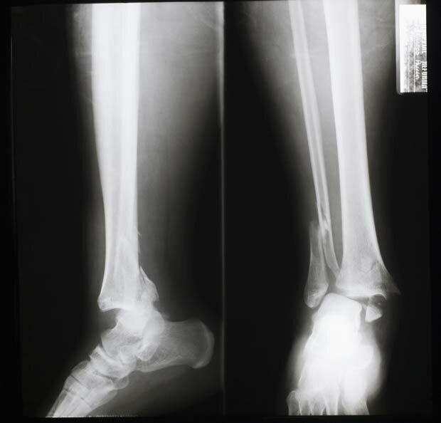 Фоны для презентаций - Рентген 6