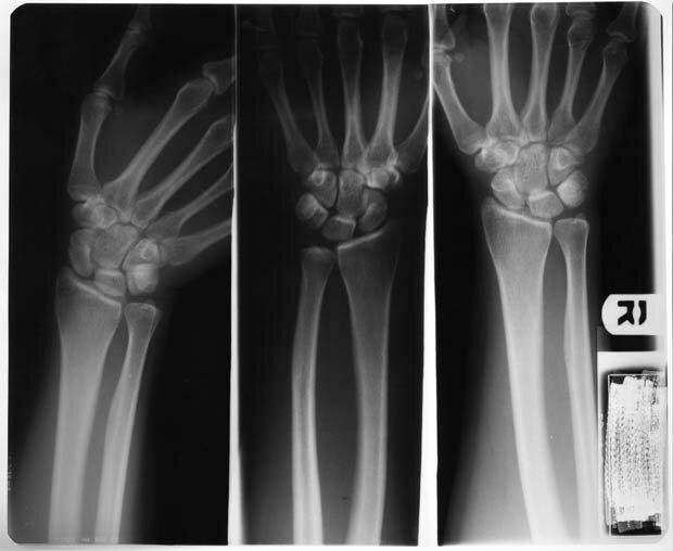 Фоны для презентаций - Рентген 8